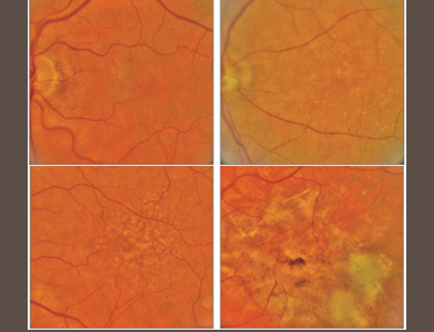 Fundus images showing age-related macular degeneration